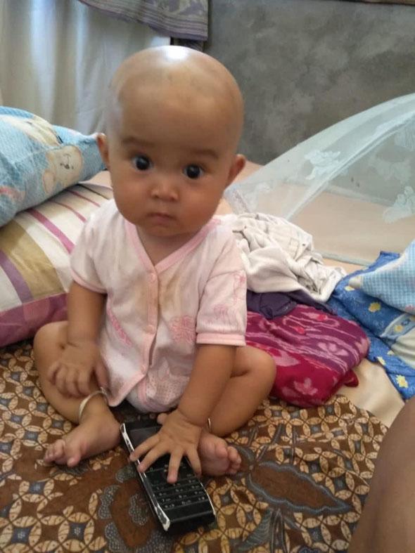 Wayan, die Herzpatientin