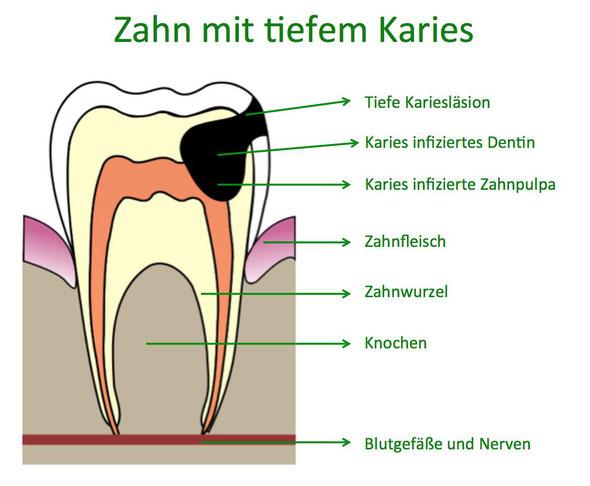 Zahn mit tiefem Karies
