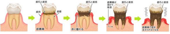 <歯周病が進行する様子>