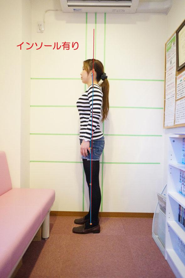 姿勢強制インソール使用後写真。前傾姿勢が改善されています。