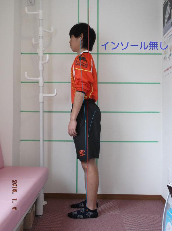サッカー部男子中学生。姿勢強制インソール未使用。前傾姿勢が強いです。