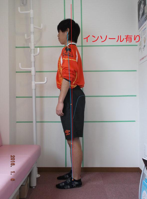 サッカー部男子。姿勢強制インソール使用後。前傾姿勢が緩和されています。
