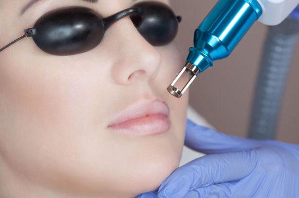 rimozione tatuaggio labbra