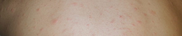 ジベルばら色粃糠疹