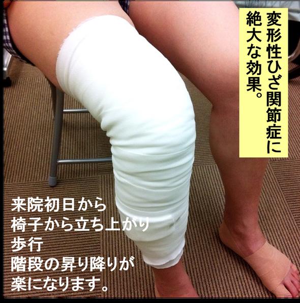 オサモミ整体院 サラシ包帯固定 変形性膝関節症