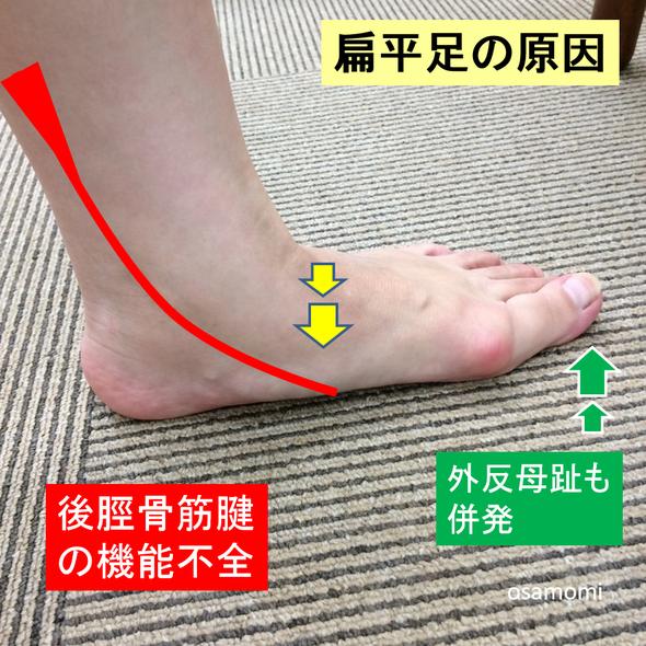 オサモミ整体院 扁平足の原因 後脛骨筋腱