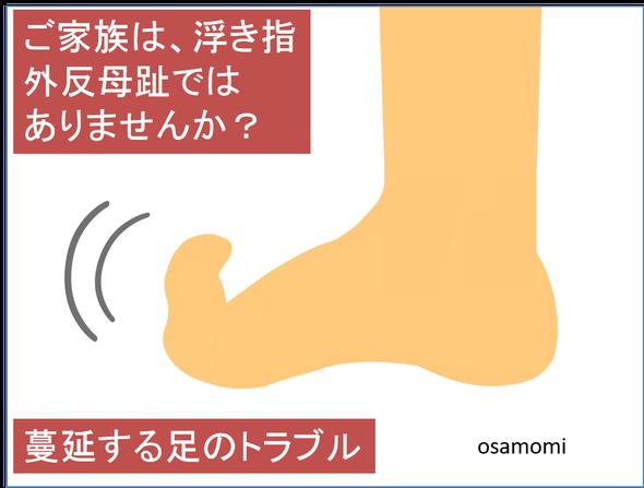 オサモミ整体院 浮き指 外反母趾