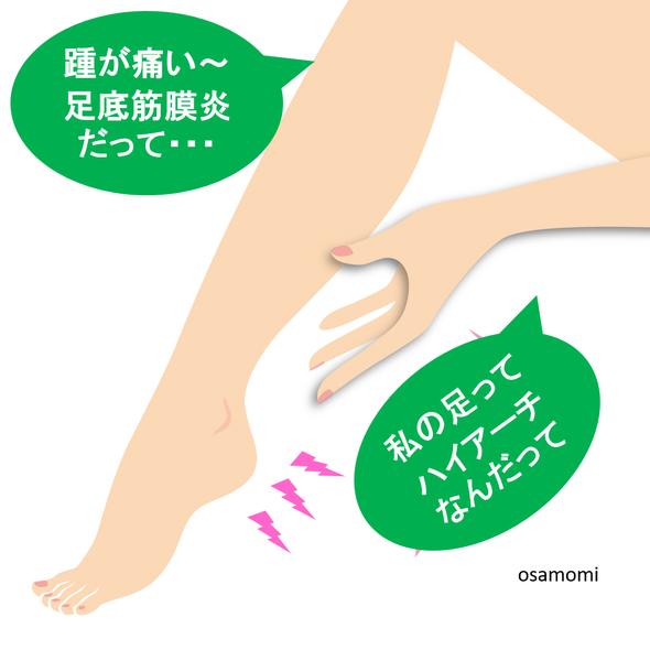 オサモミ整体院 足底腱膜炎