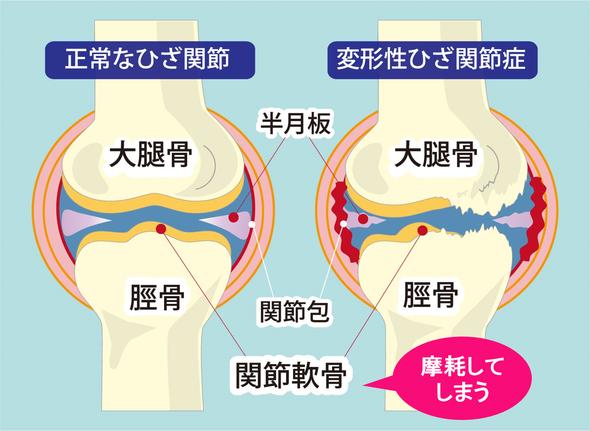 オサモミ整体院 変形性ひざ関節症
