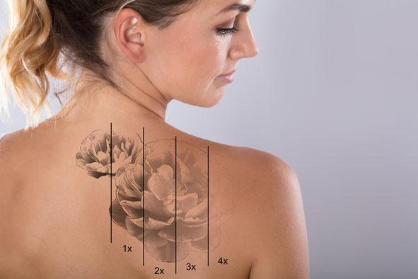 Tattooentfernung Bamberg Laser