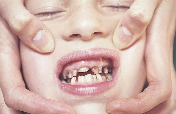 Schwere Karies bei mangelhafter Zahnpflege. Karies ist häufig kombiniert mit einer chronischen Entzündung der Zahnschleimhaut – wie auf diesem Bild im Oberkiefer ersichtlich.
