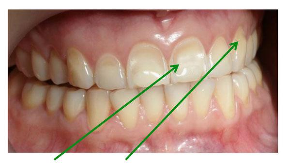Getränke verfärben den Zahn
