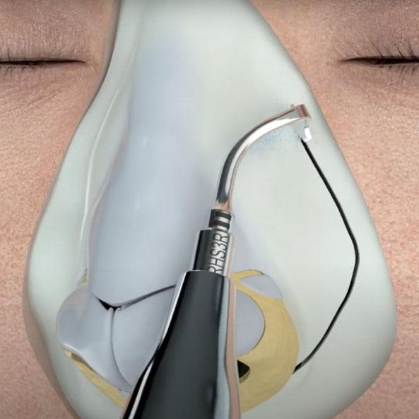 Wir arbeiten in der Nasenchirurgie mit einem Ultraschallmesser: Für eine präzise, weniger traumatische Operation