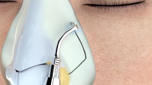 Ein Ultraschallmesser schneidet Knochen mit großer Präzision.
