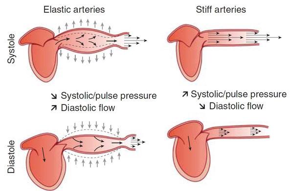 Detection of Arterial Stiffness