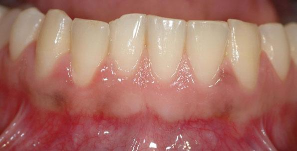 nicht blutendes Zahnfleisch