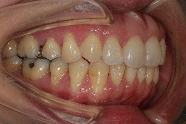 奥歯の歯茎の再生治療例 治療前