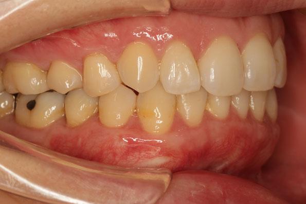 奥歯の歯茎の再生治療例 治療後