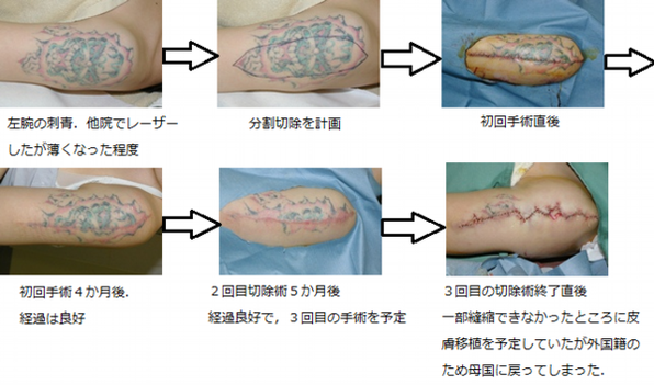 腕の刺青切除