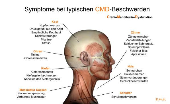 Symptome bei typischen CMD-Beschwerden. CMD - Craniomandibuläre Dysfunktion.  Auf unserer Seite finden Sie: CMD-Beschreibung, CMD-Symptome,   CMD-Beschwerden und Hilfe durch eine CMD-Schienentherapie. Unter einer CMD-Behandlung versteht (©  Susanne Pilsl)