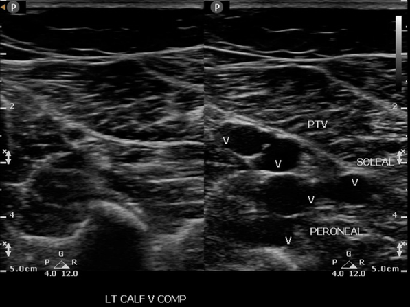 Ultrasound image showing the posterior tibial, peroneal and soleal veins in the calf with compression. Evaluation of the calf is essential in the detection of DVT.