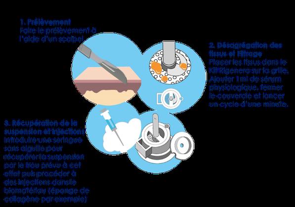 Protocole Rigenera pour traitement dentaire et plaies