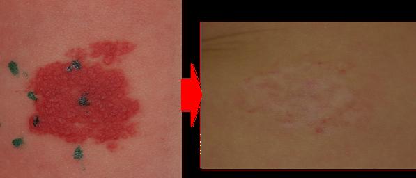 腹部苺状血管腫、平坦型