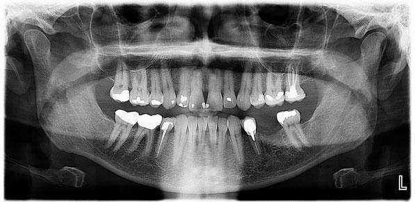 panoramic dental x machine cost