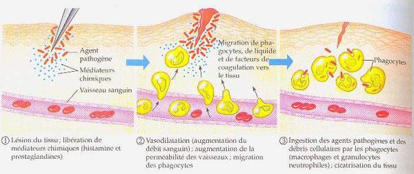 Etapes de la réaction inflammatoire. Cliquer sur l'image pour l'agrandir. Source: ? (internet)