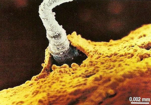 Spermatozoide dont la tête a pénétré dans un ovule.
