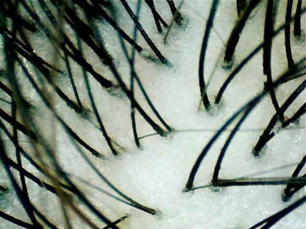 50倍〜70倍の倍率で撮影しました。毛穴の皮脂の状態までくっきり写せています!