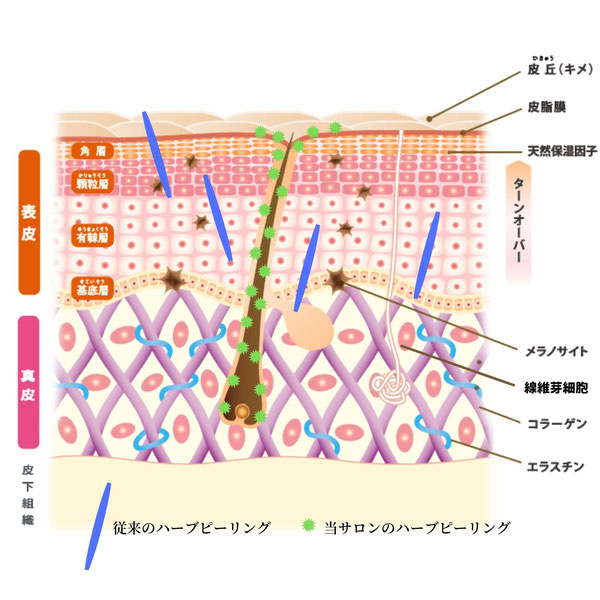 OHLハーブピーリングは棘状ではなく、微粒子化したハーブピーリングパウダー自体を棘のある球体とし、毛穴から導入する為、痛みや剥離が起こりません。