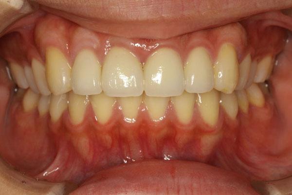歯茎の再生とオールセラミックで治療