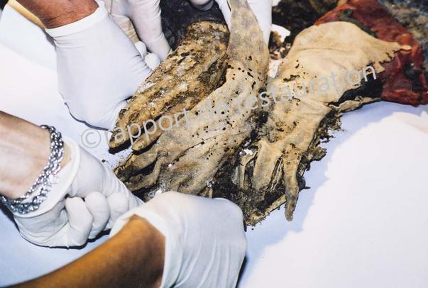 Fig. 13 - Gants avant restauration - Gloves befor restauration. ©rapport de restauration