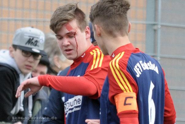 B-Jugend Landesliga: JFV Eichsfeld - MTV Isenbüttel