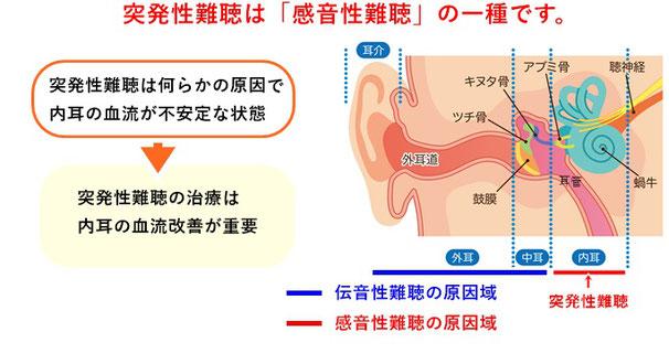 突発性難聴は内耳での問題があります