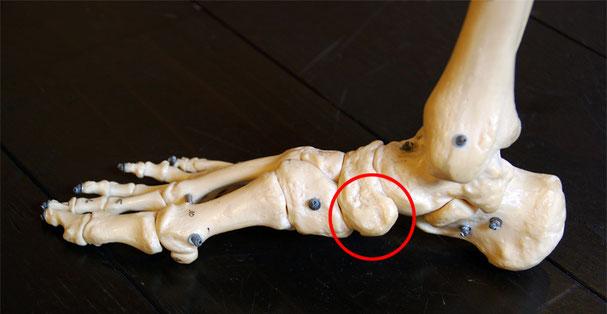 赤丸で囲った部分が舟上骨です 足部の内側、内くるぶしの斜め前方にあります