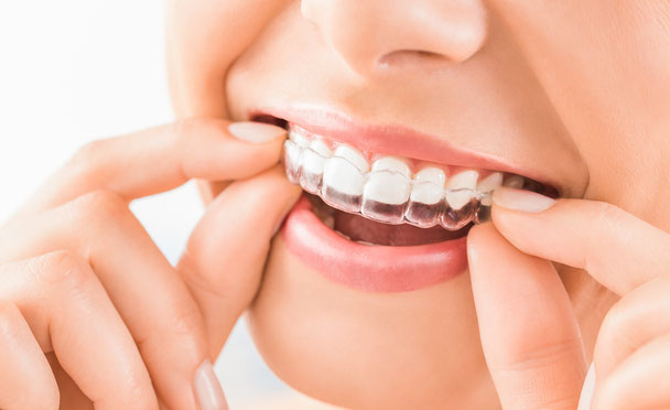 Unsichtbare Zahnspange, Invisalign