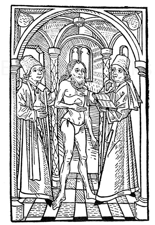 """Der Aussatzschaumann aus dem """"Buch der Natur"""", gedruckt von Hans Schönsperger 1482."""