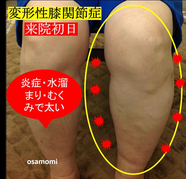 オサモミ整体院 変形性膝関節症 ひざ痛