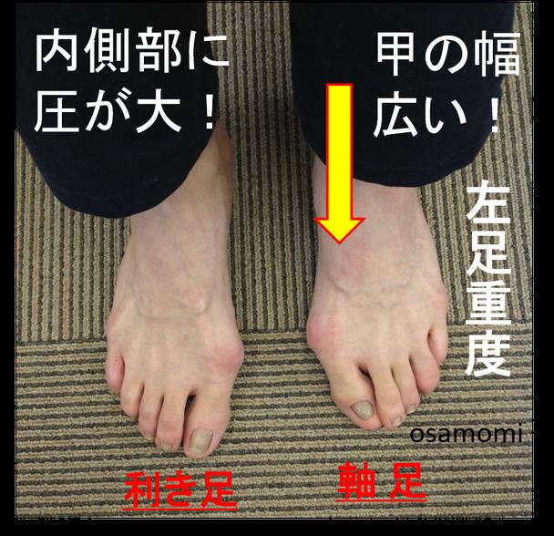 オサモミ整体院 外反母趾 股関節異常