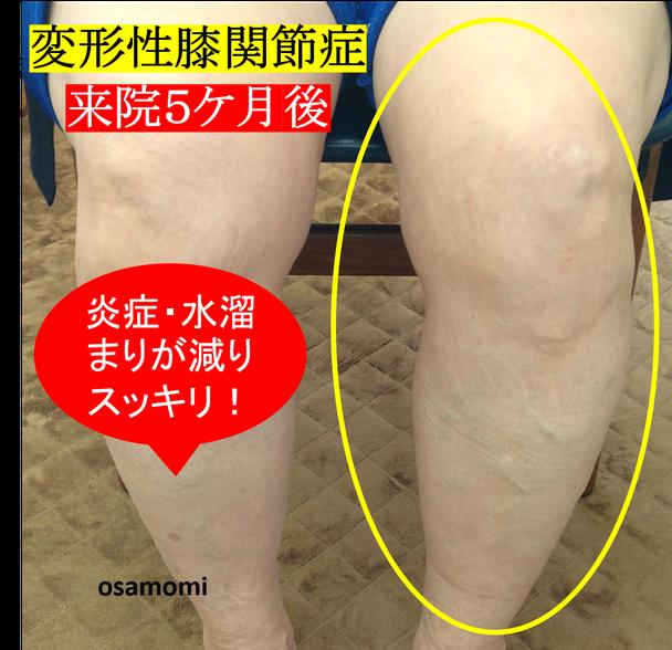 オサモミ整体院 変形性膝関節症 脚太り むくみ