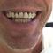 cas avant traitement bridge complet maxilaire
