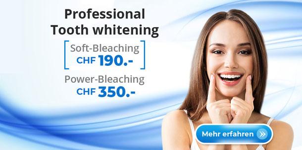 Teeth whitening Soft Bleaching Power Bleaching