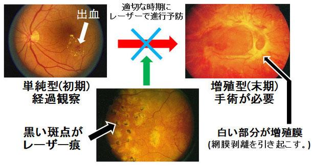 尼崎 眼科 緑内障 日帰り白内障手術 糖尿病網膜症