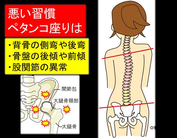 正しい座り方を学ぶ。昭島市のオサモミ整体院。ペタンコ座り・側弯・股関節痛い