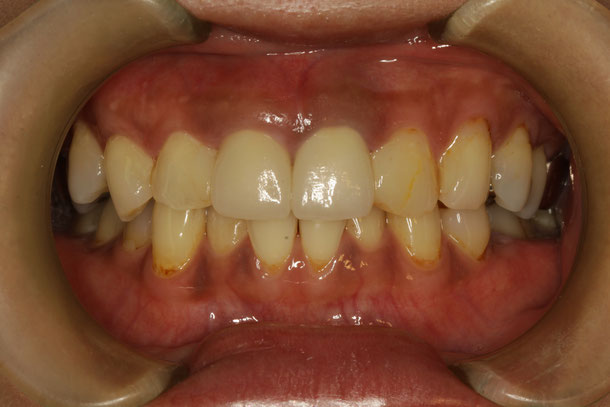 差し歯の長さが長いのを短くする治療法