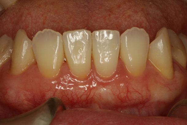 歯茎の再生治療後