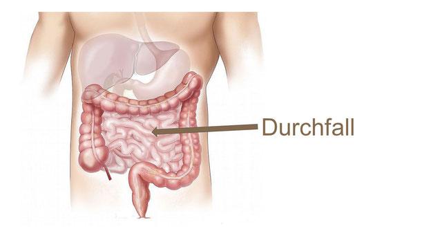 Durchfall Diarrhoe Mönchengladbach Heilpraktiker NIessen