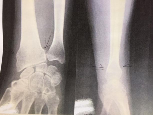 橈骨遠位端骨折のレントゲン画像